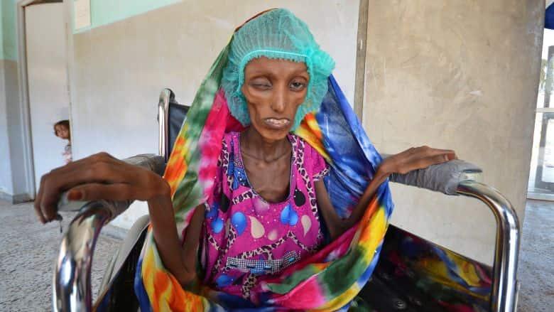 Severe Malnutrition in Yemen