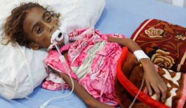Death of 7 year old Jamila Victim of a man made catastrophe in Yemen